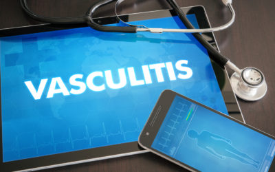 causes of vasculitis